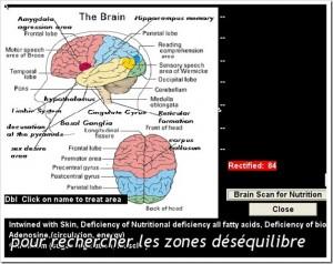 Scintigraphie-du-cerveau.jpg