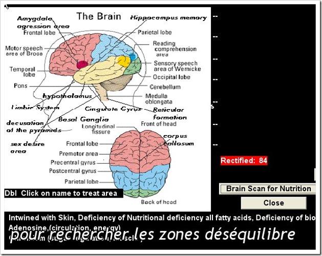 Scintigraphie du cerveau