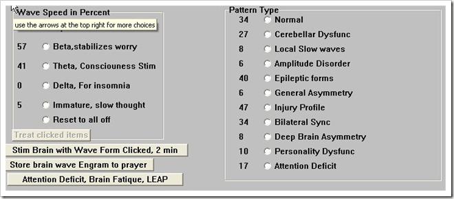 Les différentes ondes cérébrales qu'il est possible de remettre en équilibre